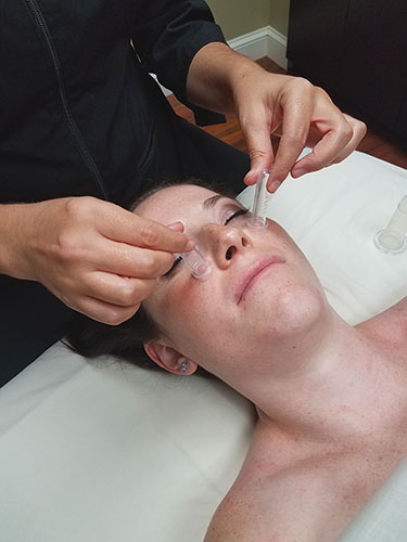 Facial Cupping at Luxe Spa