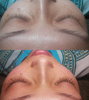 Luxe Eyelash Extensions client before and after vertical.