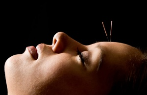 Acupuncture - New Clients - 20% Savings